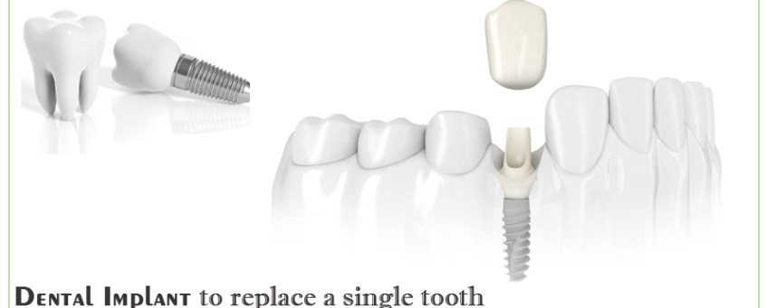 Dental Implant To Replace A Single Tooth