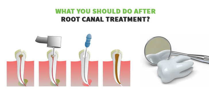 What You Should Do After Root Canal Treatment?