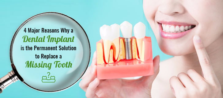 4 Major Reasons Why a Dental Implant is the Permanent Solution to Replace a Missing Tooth