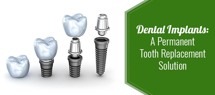 Topic: Dental Implants: A Permanent Tooth Replacement solution