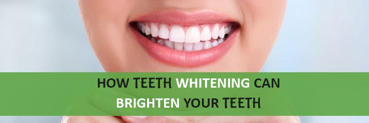 How Teeth Whitening Can Brighten Your Teeth?