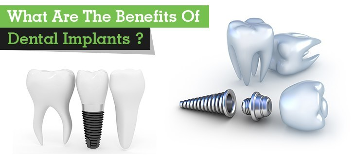 What Are The Benefits Of Dental Implants ?