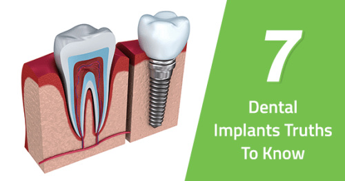 7 Dental Implants Truths To Know