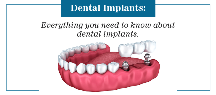 dental implant in pune