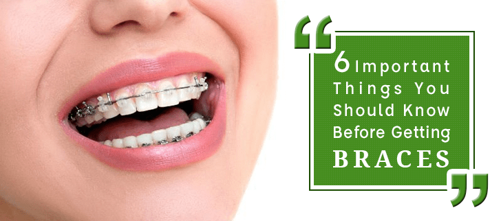 6 Important Things You Should Know Before Getting Braces
