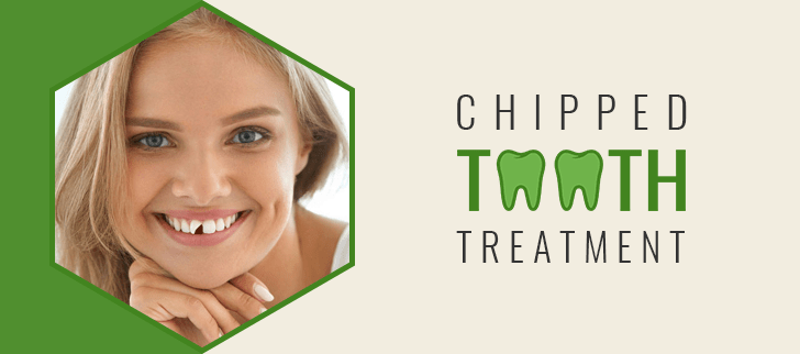 Chipped Tooth Treatment