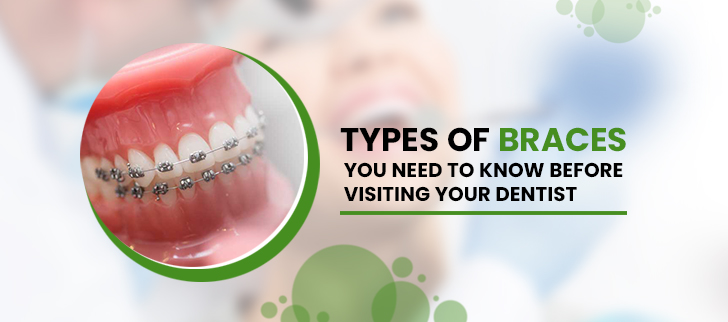 Types of Braces You Need to Know Before Visiting Your Dentist