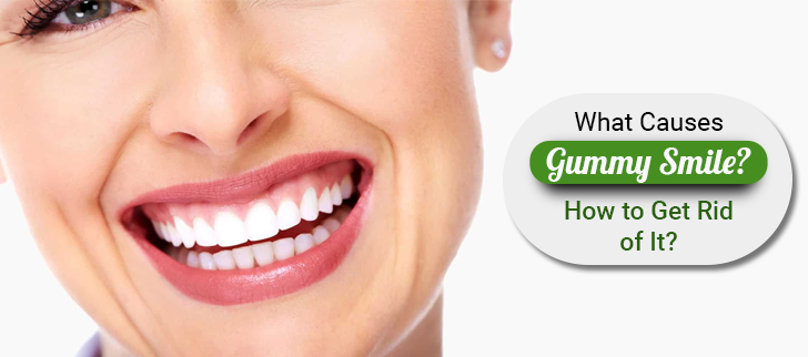 What Causes Gummy Smile? How to Get Rid of It?