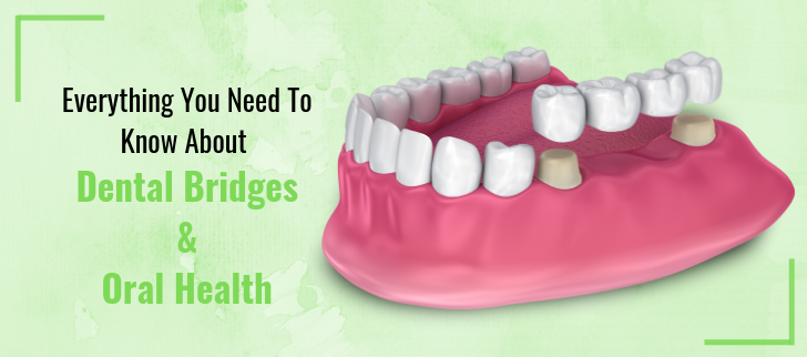 Dental Bridges and Oral Health
